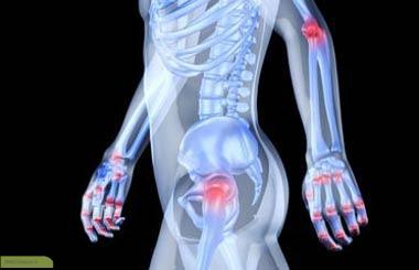 چگونه عفونت مفصل ایجاد می شود؟