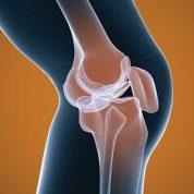 درد مفاصل را چگونه درمان کنیم؟