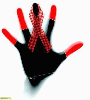 چگونه انسان به ویروس ایدز آلوده می شود؟