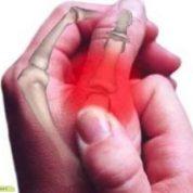 چگونه با تغذیه مناسب با التهاب مفاصل مقابله کنیم؟