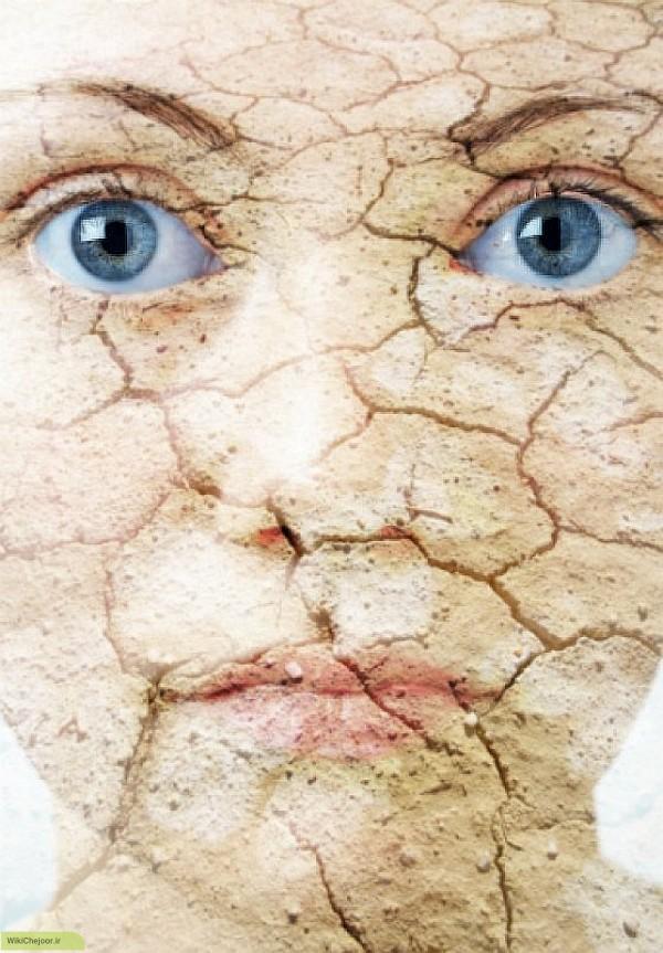 چگونه شانس ابتلا به سرطان پوست را در خود کاهش دهید ؟