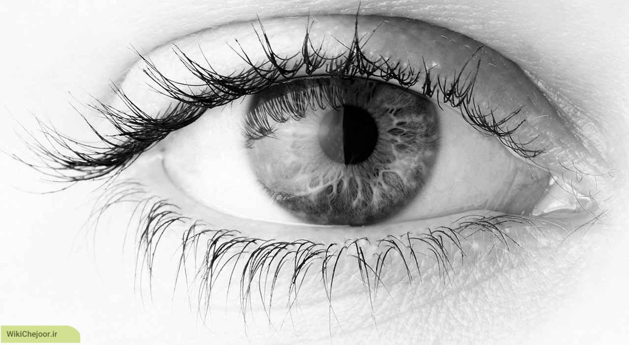 چگونه بعضی از بیماری های چشم را شناسایی کنیم ؟
