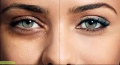 چگونه تیرگی دور چشم را برطرف کنیم؟