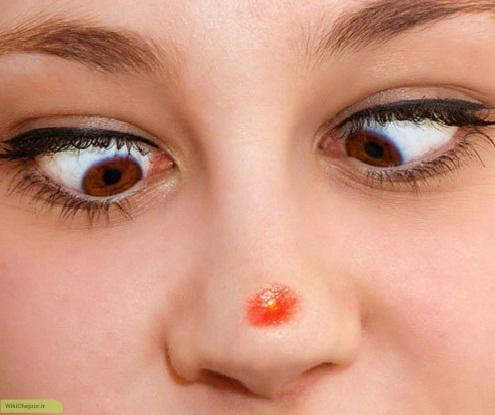چگونه جوش صورت را درمان کنیم ؟