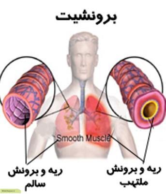 چگونه برونشیت درمان می شود؟