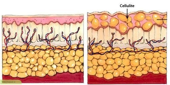 چگونه گلولههای پوست (سلولیت) را محو کنید؟