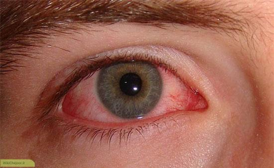 چگونه «باد کولر خودرو» به چشمهایتان آسیب می رساند؟