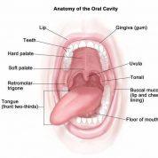 چگونه نشانه های بیماری جسمی در دهان را بشناسیم؟