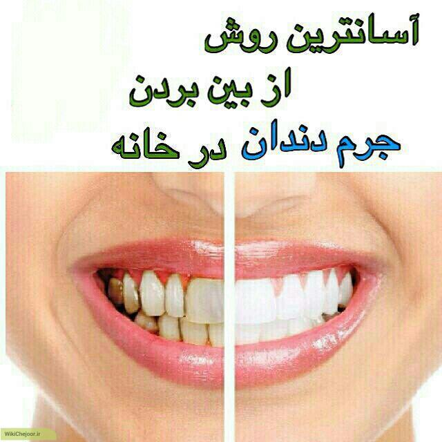 چگونه جرم های دندان را به آسانی از بین ببریم؟