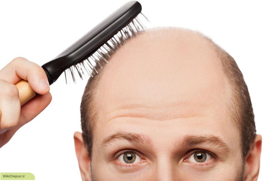 چگونه با طب سنتی از ریزش مو جلوگیری کنیم؟