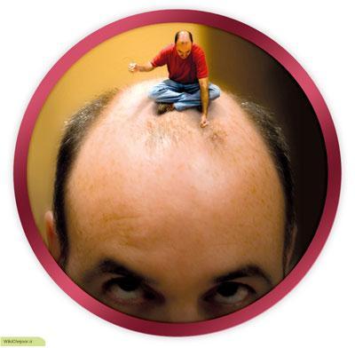 انواع کاشت مو به روش BHT: