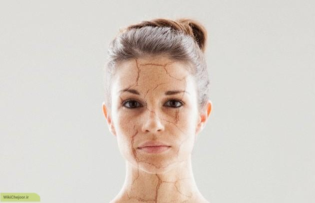 چگونه میتوان از خشکی پوست جلوگیری کرد؟