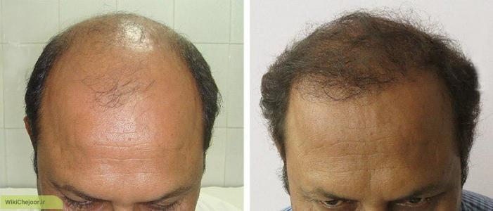 چرخۀ موهای بدن: