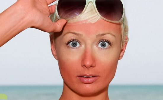 چگونه میتوان از آفتاب سوختگی جلوگیری کرد؟(مرحله دوم)