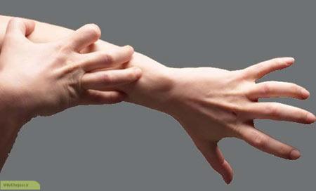چگونه میتوان از ترک خوردن دست ها جلوگیری کرد؟