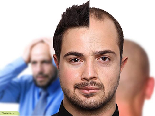 چگونه میتوان با کاشت مو به چهره ای زیبا دست یافت؟