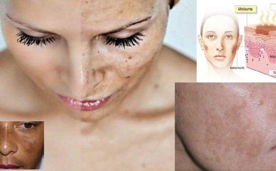 چگونه بیماری های پوستی را بشناسیم و از بروز آن ها جلوگیری کنیم؟