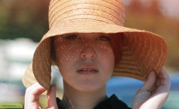 توصیه هایی برای درمان آفتاب سوختگی: