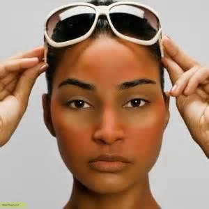 چگونه آفتاب سوختگی را درمان کنیم؟