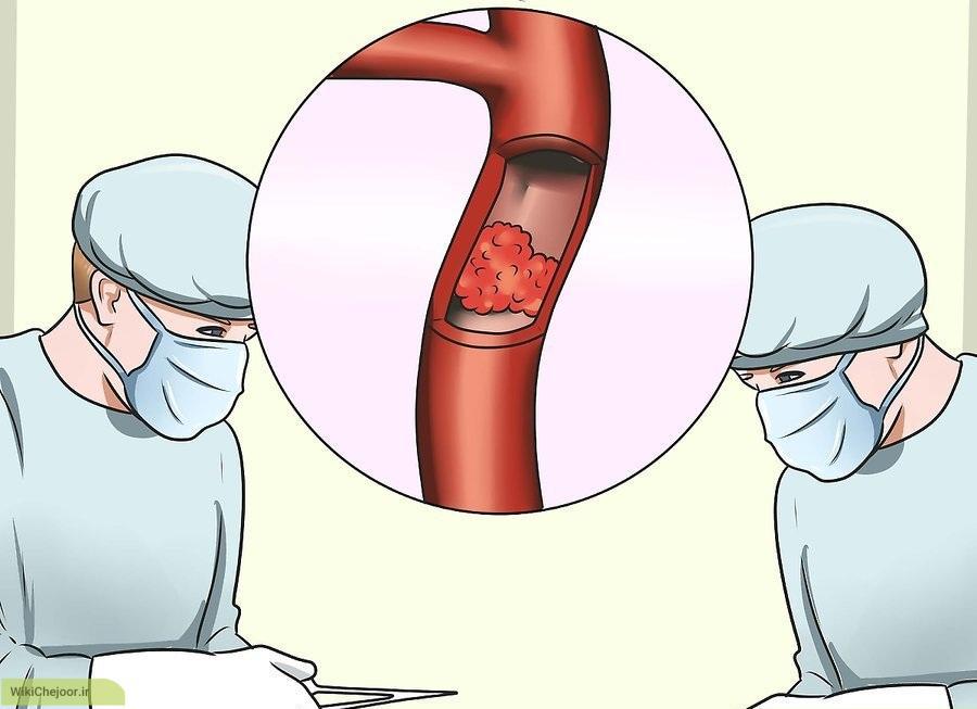 چگونه فشار خون خود را بالا نگه داریم؟
