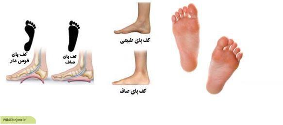چگونه نوع کف پای خود را تشخیص دهیم؟