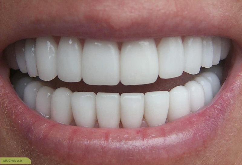 چگونه با روش طبیعی دندانی سفید و سالم داشته باشیم ؟