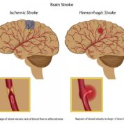 چگونه علائم سکته مغزی را تشخیص دهیم و راه های پیشگیری از آن را بدانیم؟