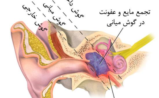 چگونه بیماری اوتیت مدیای حاد در گوش ایجاد می شود