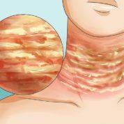 چگونه در بدن خارش مزمن رخ می دهد؟