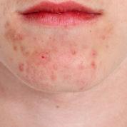 چگونه درماتوزهای التهابی (Atopic Dermatitis) را تشخیص دهیم