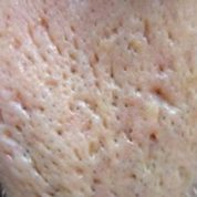 چگونه آکنه اکسکوریه در پوست رخ می دهد؟