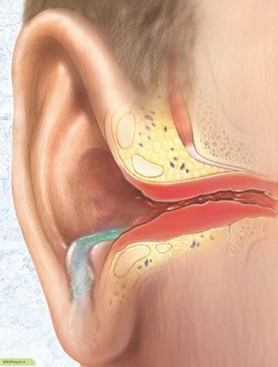 چگونه عفونت قارچی گوش ایجاد می شود؟