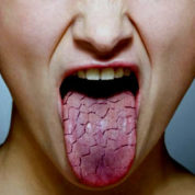 چگونه سیالادنیت میواپی تلیال (سندرم شوگرن) ایجاد می گردد؟