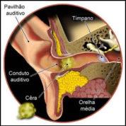 چگونه بیماری پاتوژنز ایجاد می شود؟