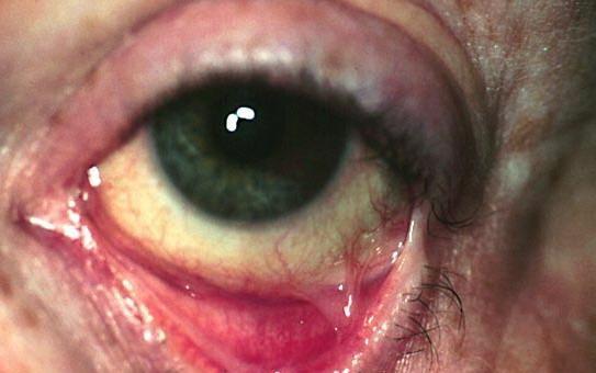 چگونه پنفیگوئید سیکاتریسیل چشمی (OCP) ایجاد می شود؟