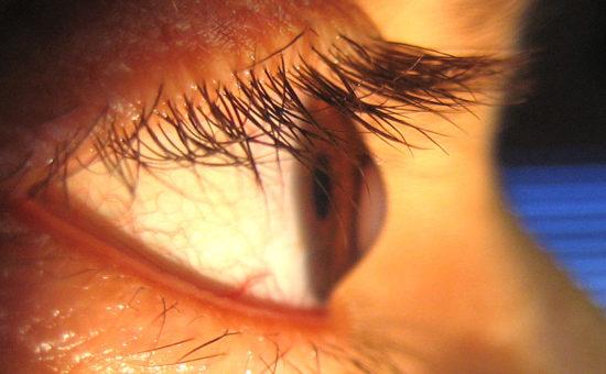 چگونه کراتوکونوس در چشم ایجاد می شود؟
