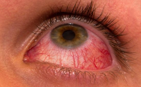 چگونه کراتیب آکانتوموبا در چشم ایجاد می شود
