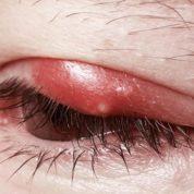 چگونه شالازیون در چشم ایجاد می شود؟