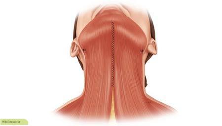 چگونه سلولیت گردنی ایجاد می شود؟
