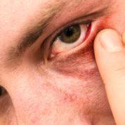 چگونه بیماری اپی اسکلریت رخ می دهد؟