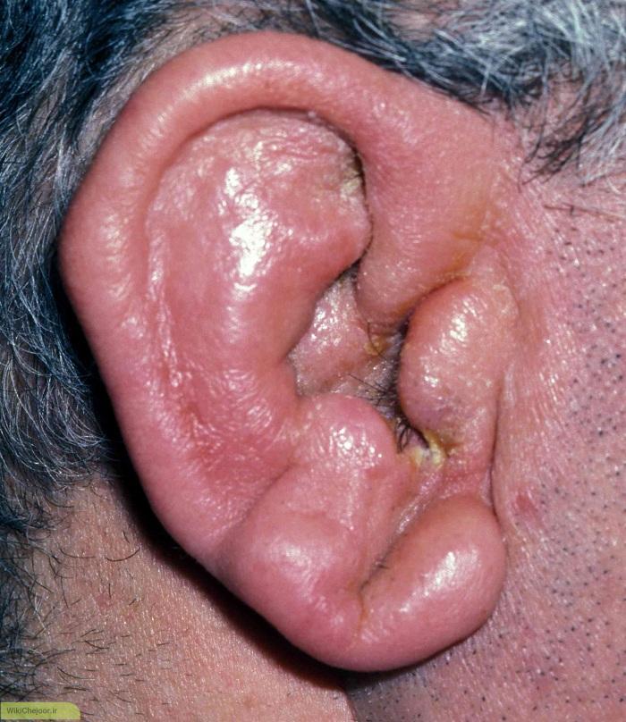 چگونه سلولیت لاله گوش ایجاد می شود؟