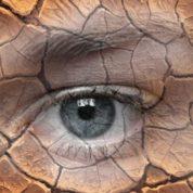چگونه خشکی چشم ایجاد می شود؟