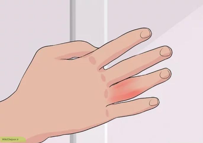 تورم دست