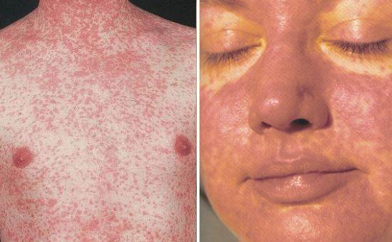 چگونه میتوان از شیوع بیماری سرخک پیشگیری کرد؟