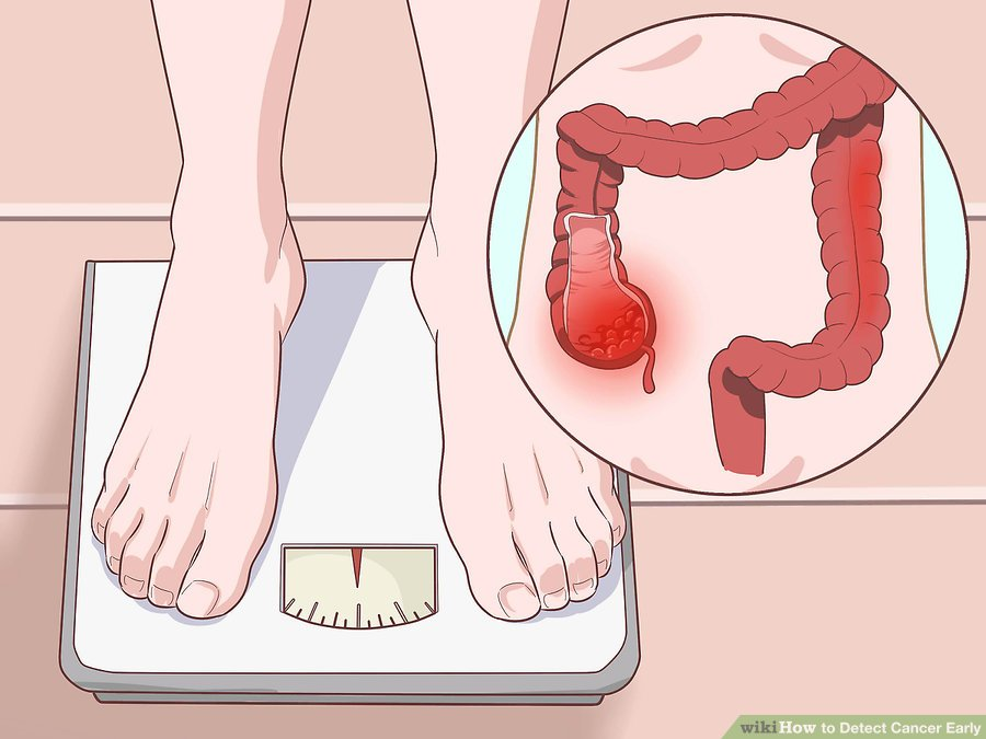 How to Detect Cancer Early