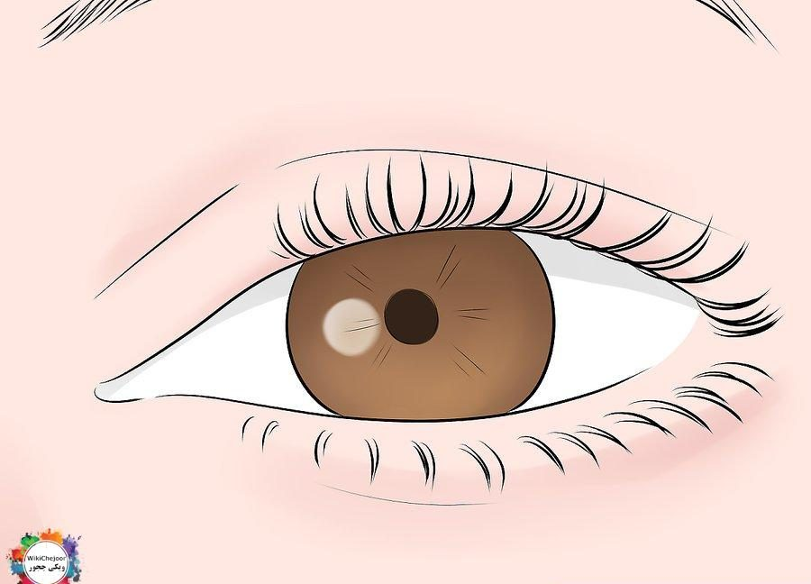 How to Diagnose Tuberous Sclerosis