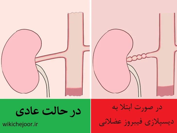 شرایط جسمانی مرتبط با گرفتگی شریان کلیه