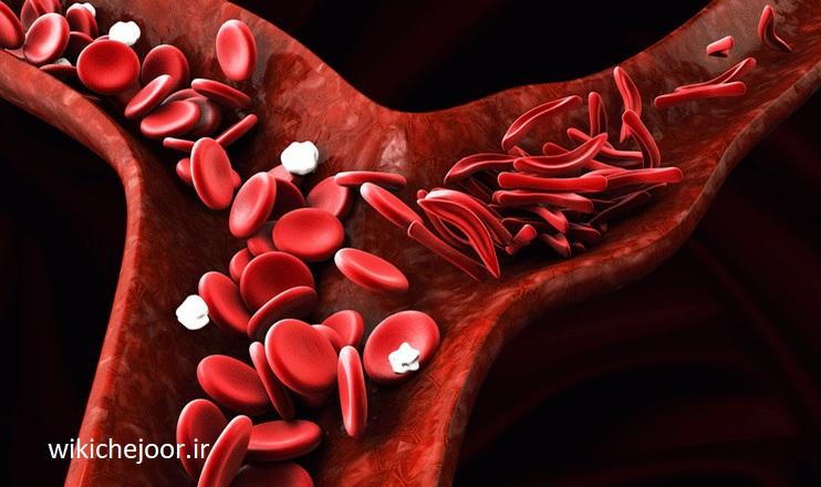 چگونه علائم بیماری سلول داسی شکل را تشخیص دهیم؟