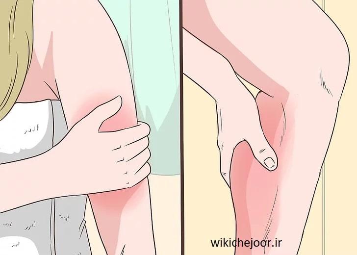 تشخیص علائم متداول سرطان خون