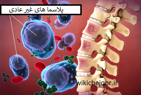 چگونه دردهای ناشی از مولتیپل میلوما را کنترل کنیم؟